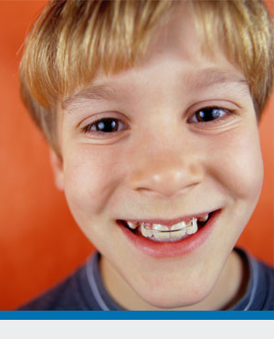 Orthodontics for Kids at Rindge Orthodontic Specialists in Rindge NH